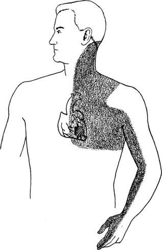 Área de distribuição da dor cardíaca referida