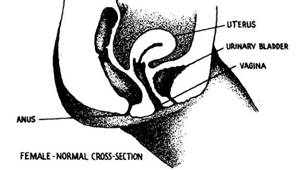 Female Urethral Caruncle